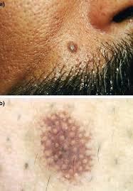 dermatoskopi 2