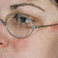 Nikel Alerjisi-Batı Tıbbı ve Geleneksel Çin Tıbbı Çerçevesinde Bütüncül Bakış