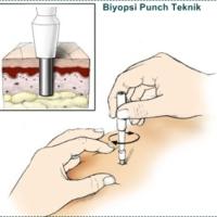 Deri Biyopsisi (Punch Biyopsi)