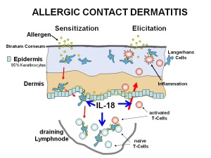 Allergcontact dermatitis